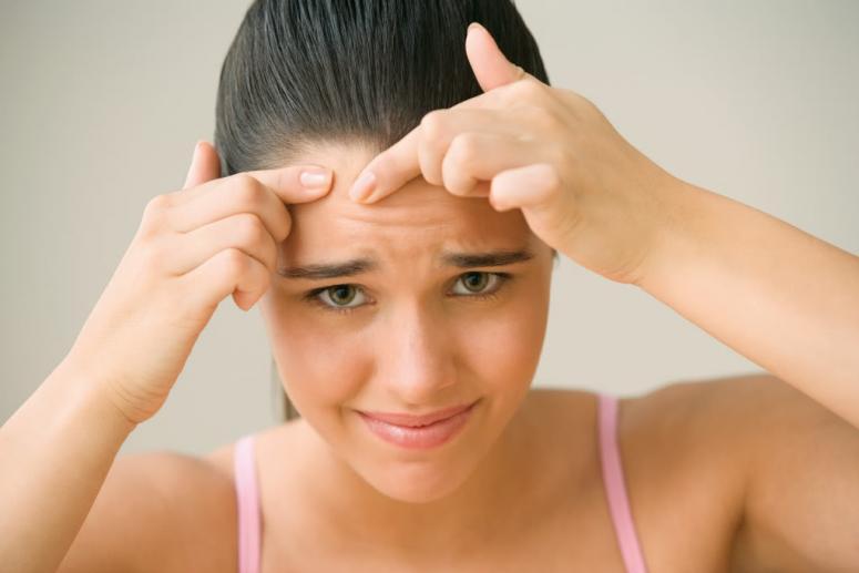 Уход за кожей при угревой сыпи