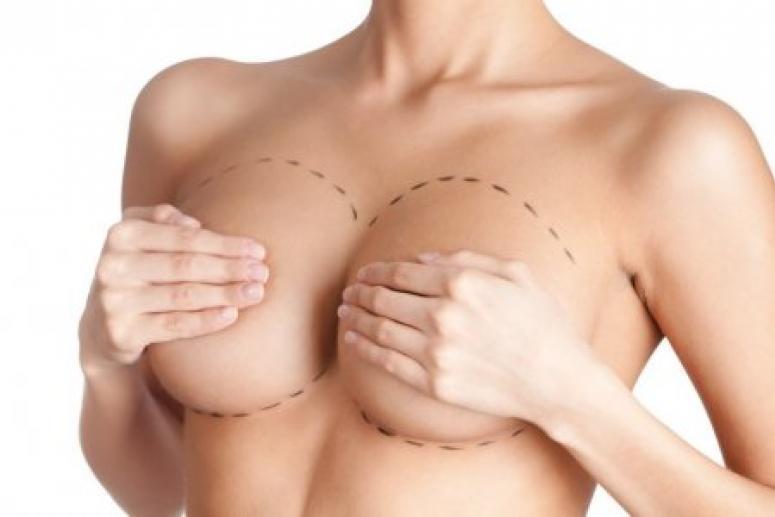 Американка призвала женщин дважды подумать перед увеличением груди