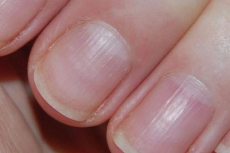 По ногтям возможно диагностировать рак