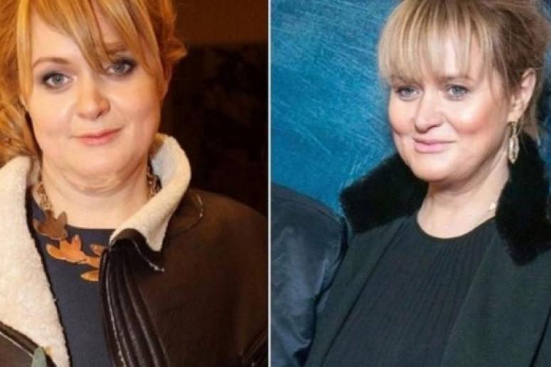 Анна Михалкова похудела и изменилась до неузнаваемости