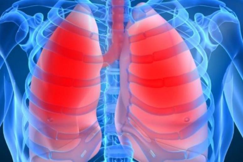 Эксперт-онколог Салли Кауэл: от рака легких защищает отказ от курения и здоровый рацион