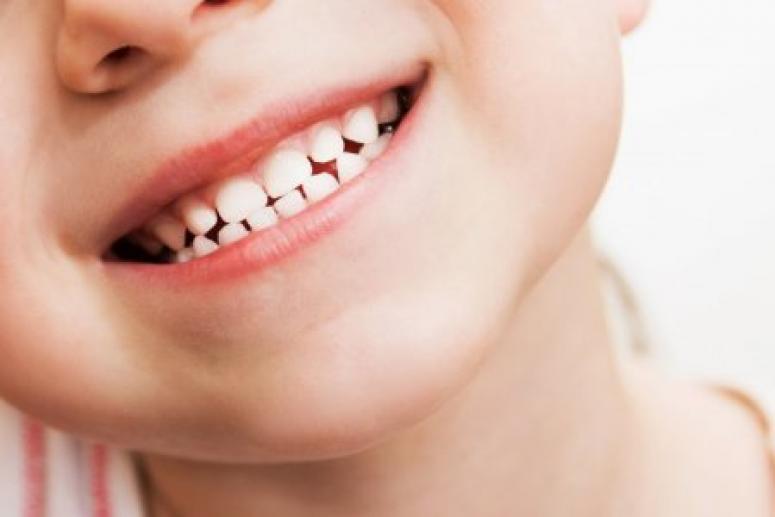 Молочные зубы нужно лечить ради здоровья коренных