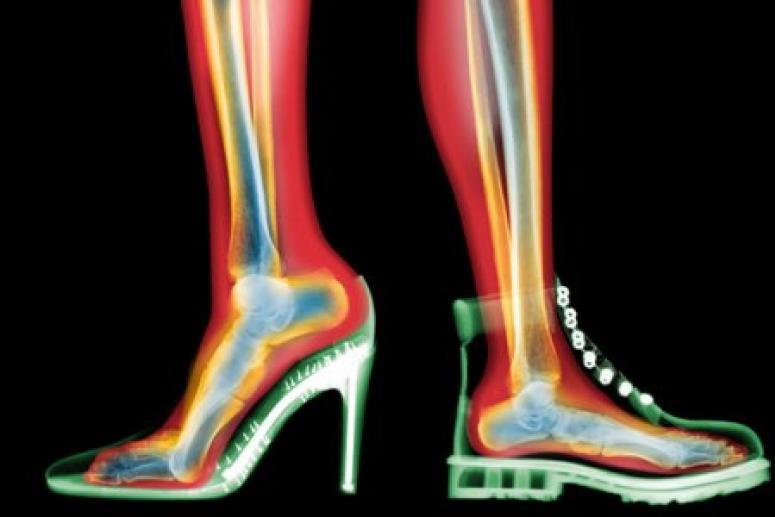 Обувь, способная по-настоящему навредить ногам