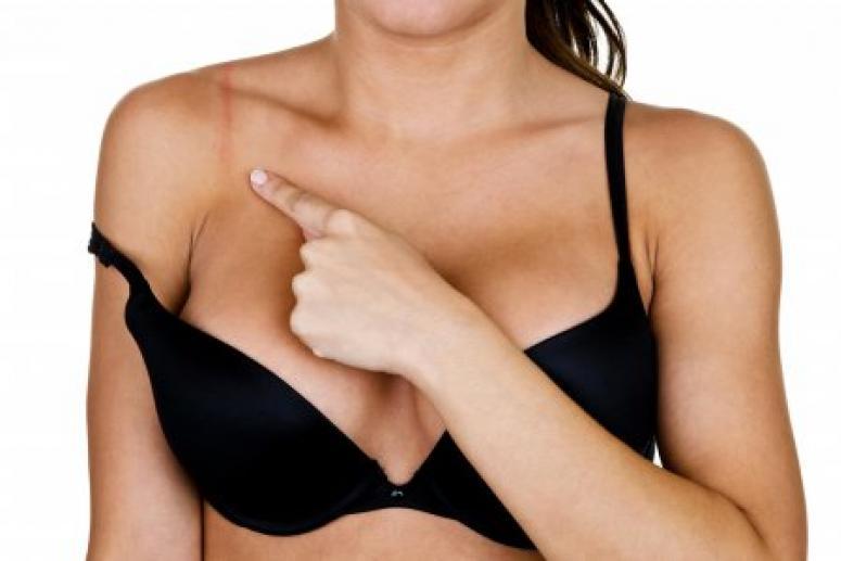 Неявные симптомы рака груди: что должно насторожить?