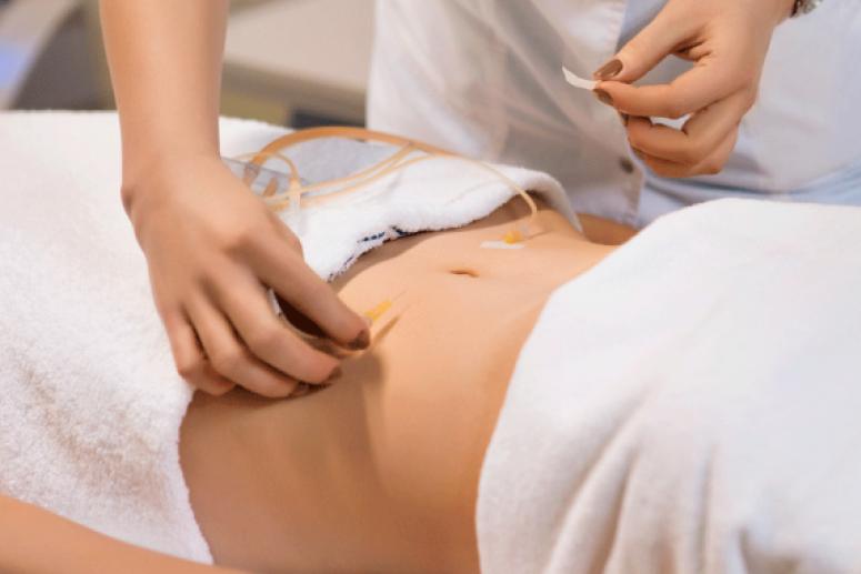 Что такое озонотерапия и как она помогает в похудении?