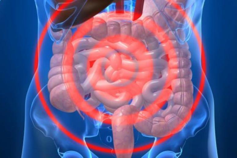 Стадии дисбактериоза и их лечение