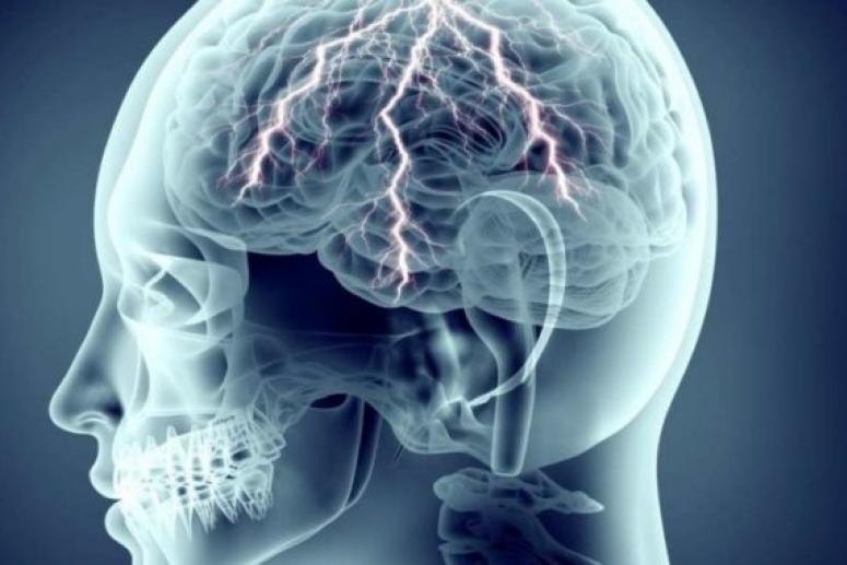 Факторы риска эпилептических припадков