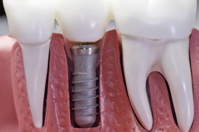Дентальная имплантация: типы имплантов