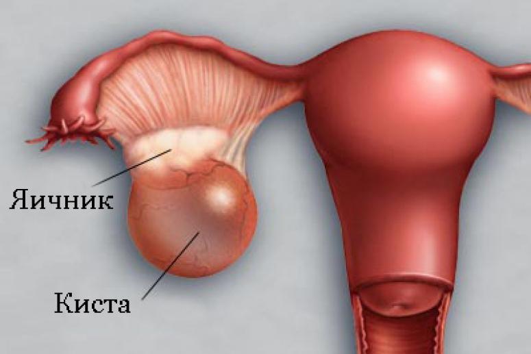 В каких органах могут образовываться кисты