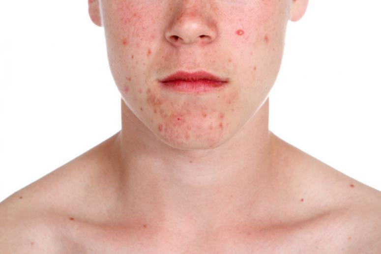 Как связаны проблемная кожа и дисбактериоз?