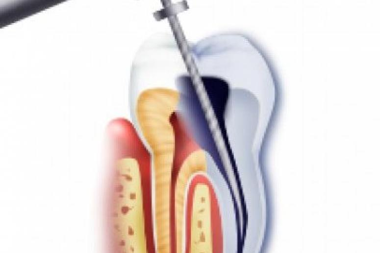Лечение корневых каналов зубов: методы