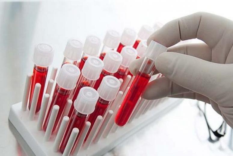 Виды анализов крови