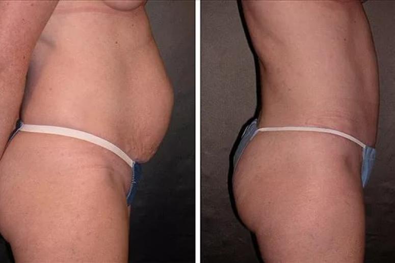 Лечения жировых отложений