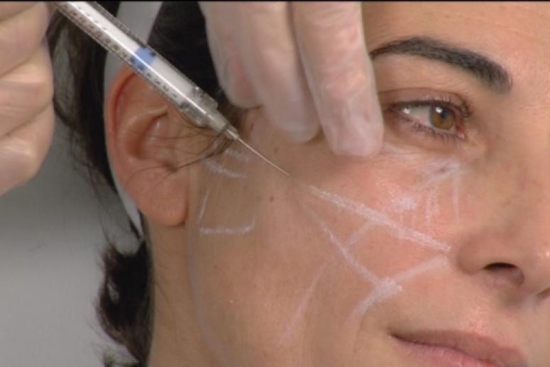 Методы контурной пластики лица
