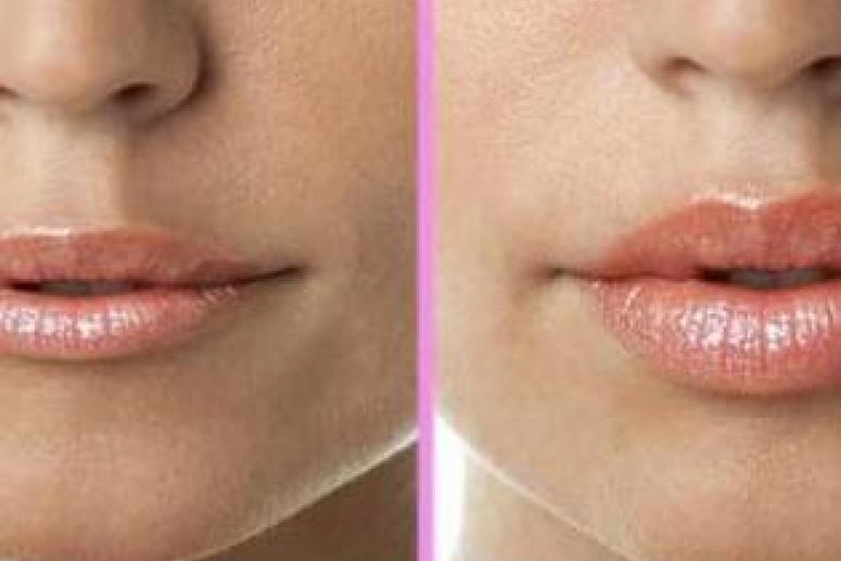 Пластика губ: методы коррекции