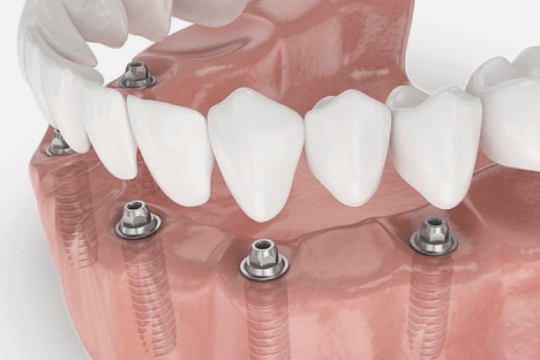 Протезирование зубов: этапы