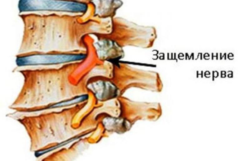 Причины и симптомы ущемления нерва