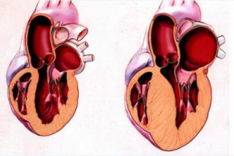Увеличение размеров сердца