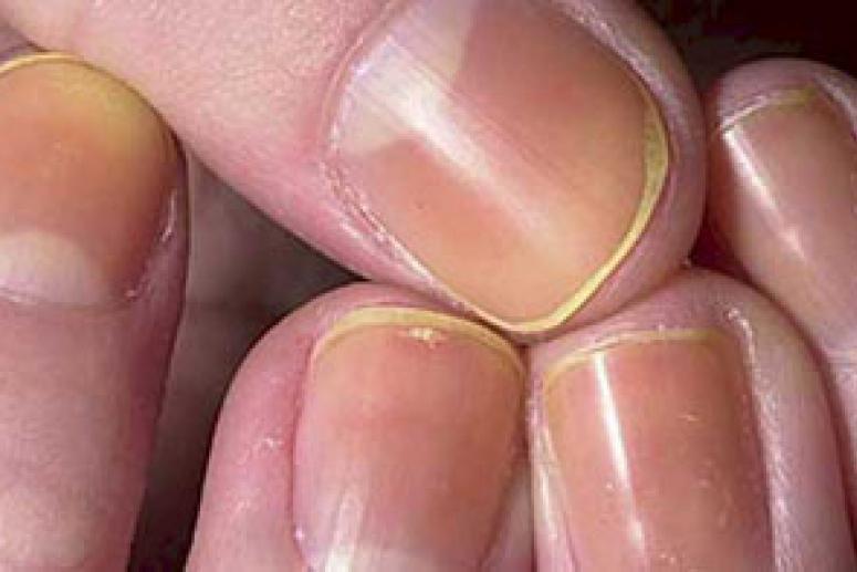 Здоровые ноготки, или как избавиться от грибка ногтей?